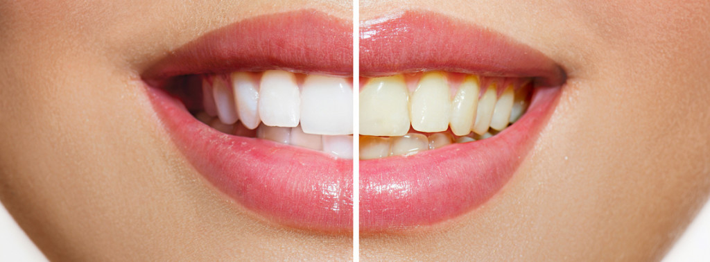 Absolute Dental Vancouver before and after