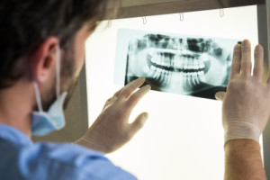 Absolute Dental Vancouver x-ray